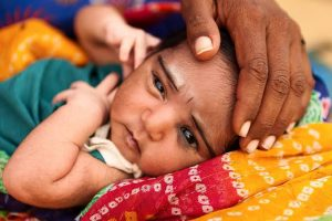 Vitamine deficiencies in children